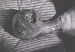 Eraserhead [1977]